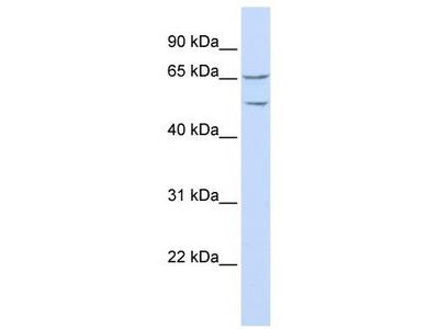 Rabbit Polyclonal Anti-TTYH1 Antibody