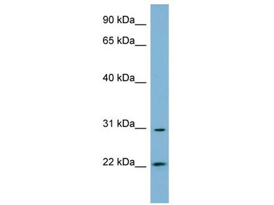 Rabbit Polyclonal Anti-HSD17B14 Antibody - N-terminal region