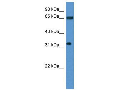 Rabbit Polyclonal Anti-SRRM4 Antibody