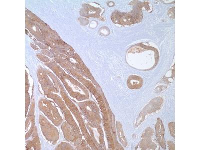 Mouse Monoclonal Ep-CAM/Epithelial Specific Antigen Antibody