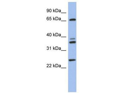 Rabbit Polyclonal Anti-ATP6V1A Antibody