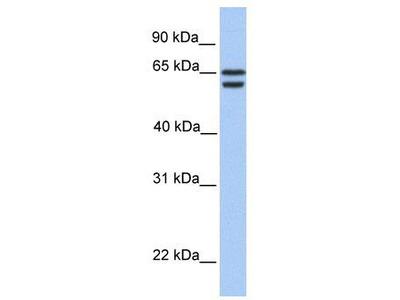 Rabbit polyclonal Anti-CDYL2 Antibody