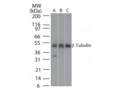 Rabbit Polyclonal beta Tubulin Antibody