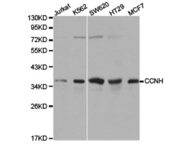CCNH Rabbit Polyclonal Antibody