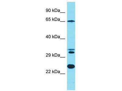 Rabbit Polyclonal Anti-KLC4 Antibody