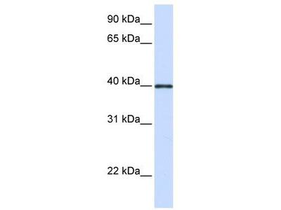 Rabbit Polyclonal Anti-GP2 Antibody
