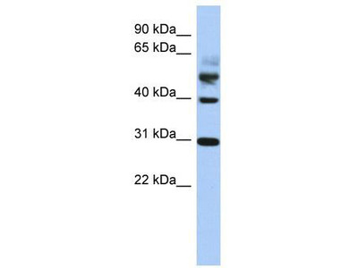 Rabbit Polyclonal Anti-TTL Antibody