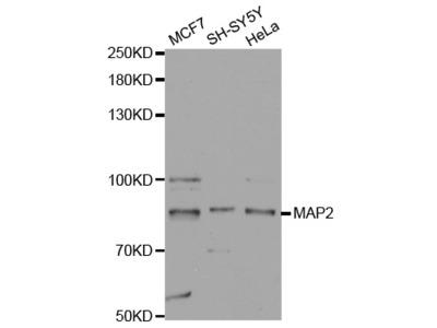 MAP2 Rabbit Polyclonal Antibody