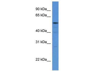Rabbit Polyclonal Anti-HARS Antibody