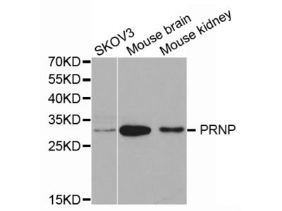 Rabbit anti-PRNP Polyclonal Antibody