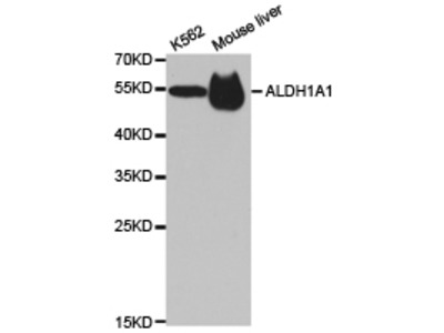 Rabbit anti-ALDH1A1 Polyclonal Antibody