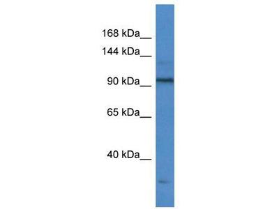 Rabbit Polyclonal Anti-TTF1 Antibody