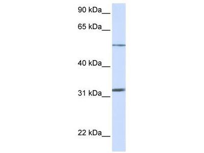 Rabbit Polyclonal Anti-SLC35A5 Antibody