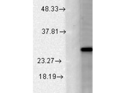 Mouse Monoclonal Anti-BK Beta2 Antibody