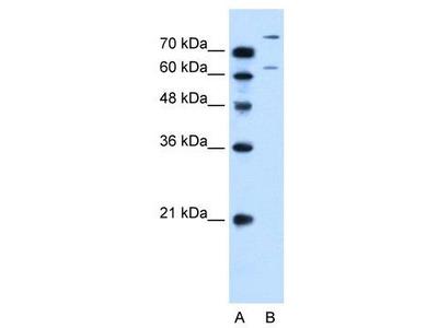 Rabbit Polyclonal Anti-SLC26A1 Antibody
