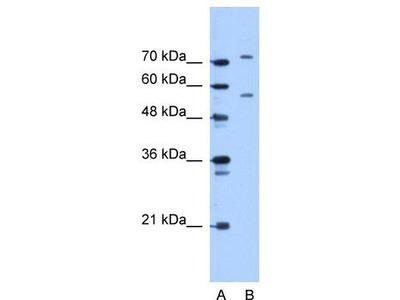 Rabbit Polyclonal Anti-JPH1 Antibody