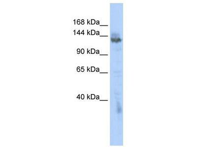 Rabbit Polyclonal Anti-ZMYND8 Antibody