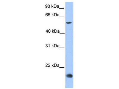 Rabbit Polyclonal Anti-CMTM8 Antibody