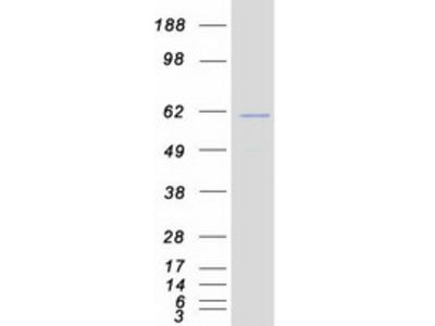 Recombinant protein of human islet cell autoantigen 1, 69kDa (ICA1), transcript variant 2