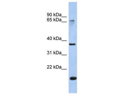 Rabbit Polyclonal Anti-ANXA10 Antibody