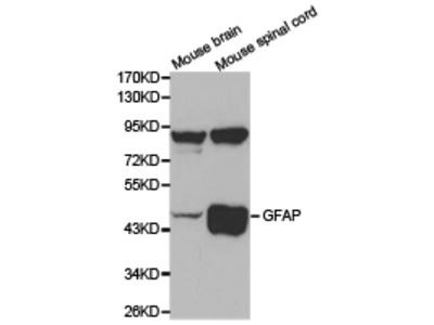 GFAP Rabbit Polyclonal Antibody