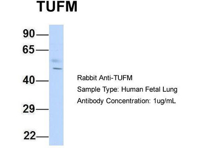 Rabbit Polyclonal Anti-TUFM Antibody - middle region