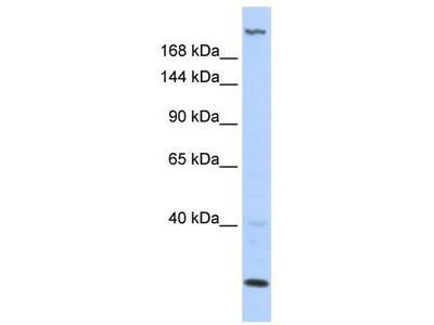 Rabbit Polyclonal Anti-TNRC6B Antibody