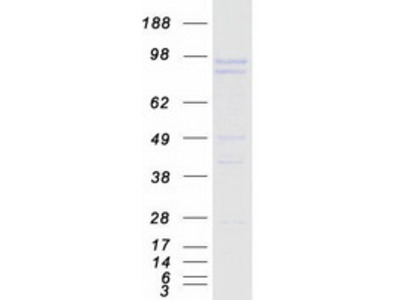 Recombinant protein of human protein phosphatase 1, regulatory (inhibitor) subunit 15A (PPP1R15A)