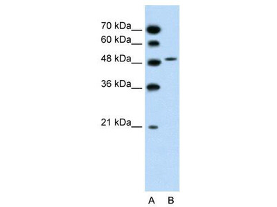 Rabbit Polyclonal Anti-SLC10A5 Antibody