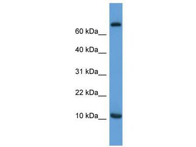 Rabbit Polyclonal anti-Ccl20 antibody