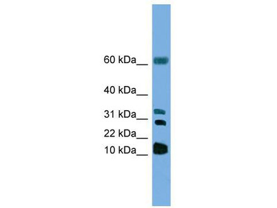 Rabbit polyclonal Anti-LTC4S Antibody