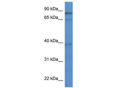 Rabbit Polyclonal Anti-ZCCHC7 Antibody