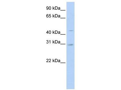 Rabbit Polyclonal Anti-SLC10A4 Antibody