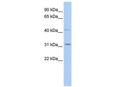 Rabbit Polyclonal Anti-SIX1 Antibody