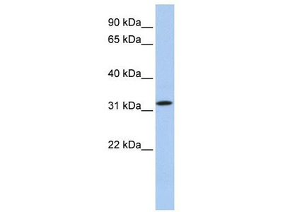 Rabbit Polyclonal Anti-C15orf26 Antibody