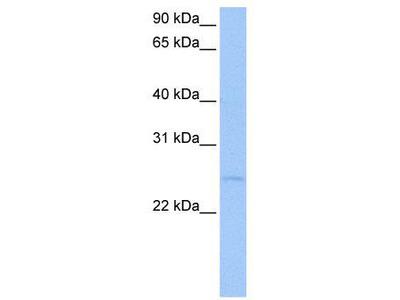 Rabbit Polyclonal Anti-CTA-126B4.3 Antibody