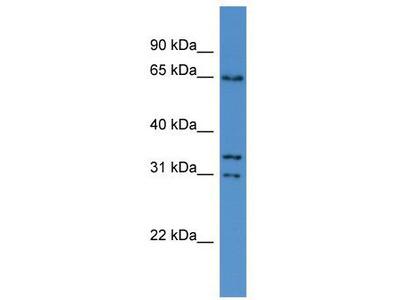 Rabbit Polyclonal Anti-CPNE5 Antibody