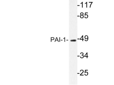 Rabbit Polyclonal Serpin E1/PAI-1 Antibody