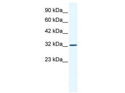 Rabbit Polyclonal Anti-SNAPC2 Antibody