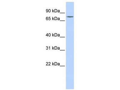 Rabbit Polyclonal Anti-GALC Antibody