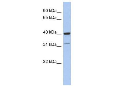 Rabbit Polyclonal Anti-THPO Antibody - middle region