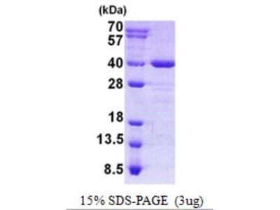 AIDA Protein