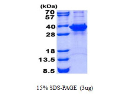 Fructosamine-3-kinase-related Protein
