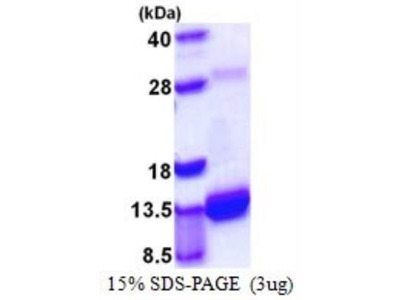 S100A4 Recombinant Protein