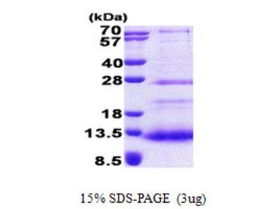 SPINK7 Protein