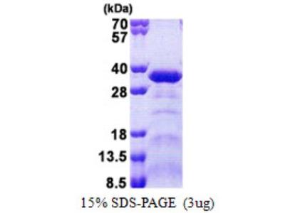 Sperm-associated antigen 7 Protein