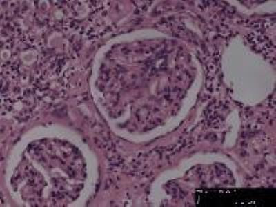 Kidney Tissue Slides (Chronic Pyelonephritis)
