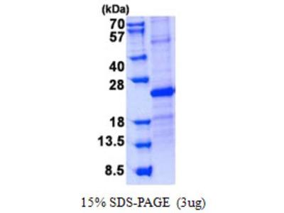 USAG1 /SOSTDC1 Protein