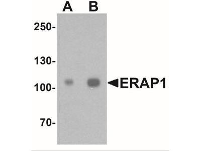 Aminopeptidase PILS / ARTS1 Antibody