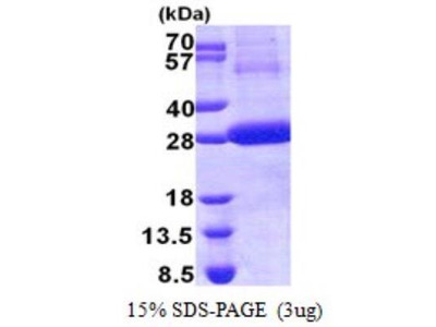 Recombinant Human Cathepsin F Protein